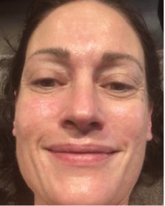 After first facial
