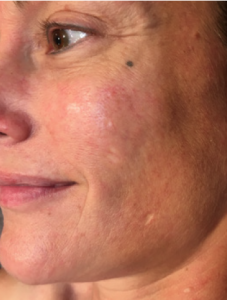 Close up of better looking skin
